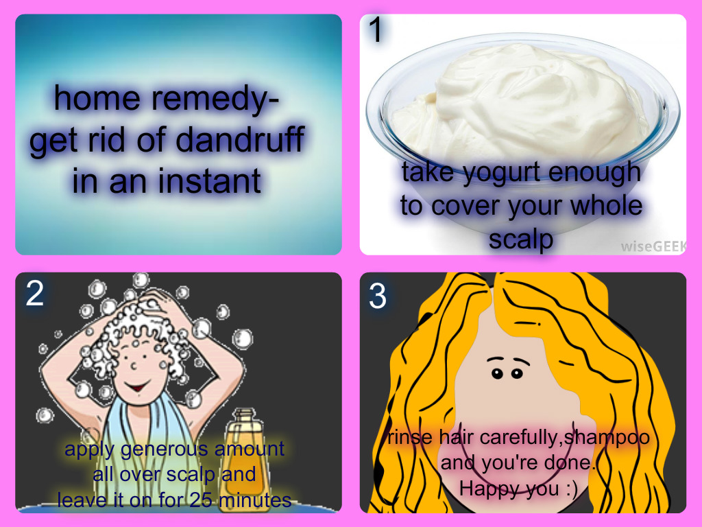 Get rid of Dandruff in an Instant- Home Remedy